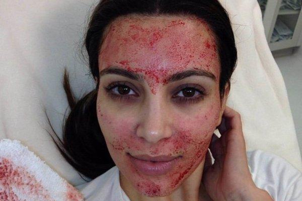 Kim Kardashian. Fotografía: Instagram/Kim Kardashian