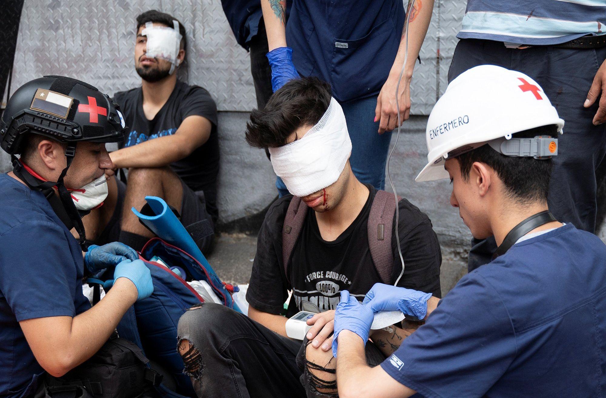 """Chile: Según el sumario de Carabineros sobre caso de Gustavo Gatica las lesiones podrían haber sido """"provocadas por manifestantes"""""""